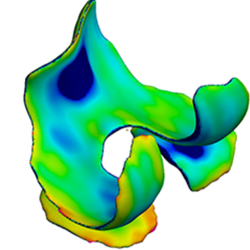 3D cartilage thickness maps of knee joint cartilage derived from segmented clinical MRI data using Stradwin.